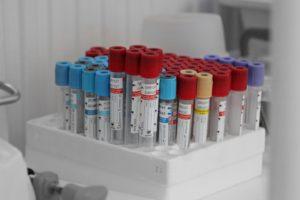 Коллективный иммунитет к коронавирусу в Иркутской области составляет к концу марта почти 50 процентов